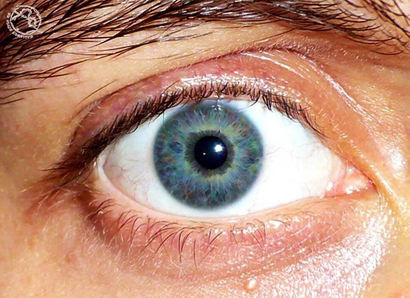 ojo-arcoiris